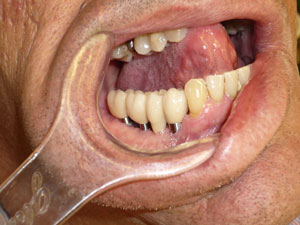 2.-protesis-fija-plural-sobre-implantes