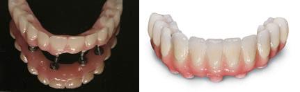 3.-Protesis-hibrida-SOBRE-IMPLANTES