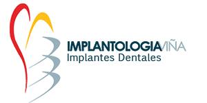Implantologia Viña